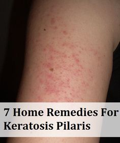 7 Home Remedies For Keratosis Pilaris  http://www.naturallivingideas.com/7-home-remedies-for-keratosis-pilaris/