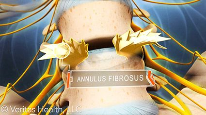 Understanding Lumbar Degenerative Disc Disease