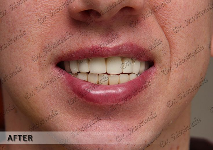 """With some few words, a sinus lift procedure is a surgery that adds bone height to the upper jaw in the area of premolars and molars which also sometimes called as sinus augmentation. Between the jaw and the maxillary sinuses, bone graft is added here by. The sinus membrane is moved upward or """"lifted"""" to make the room for the bone. Oral and maxillofacial surgeons have done this kind of surgery.       http://thesinuslift.com/sinus_lift.php"""