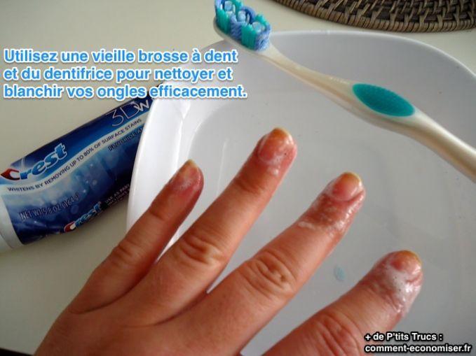 L'Astuce Redoutable Pour Blanchir ses Ongles en Moins d'1 Minute.