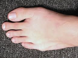 Did you know that this is called Morton's Toe??  I have it and I had no clue there was a name for it..  http://en.wikipedia.org/wiki/Morton's_toe
