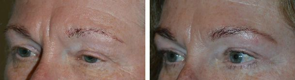 Before (left) and 3 months after (right) Quad-Blepharoplasty (with fat transposi
