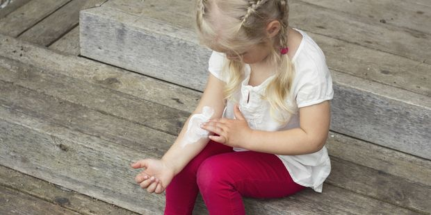 The frequent use of the ointment is fuelling a rise in infections resistant to fusidic acid, and a multi-drug-resistant strain of staphylococcus aureus, or MRSA. Photo / Thinkstock