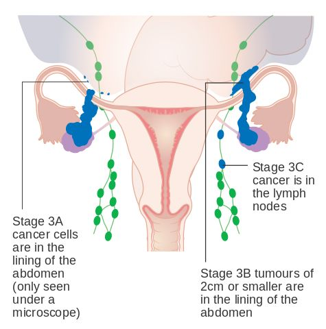 What is Ovarian Cancer?Any cancerous growth occurring in the ovary is called as the ovarian cancer. Ovarian cancer is the fifth most common cause of deaths in women. Only forty six percent of the women diagnosed with ovarian #cancer are able to survive for five years. However, as per ....