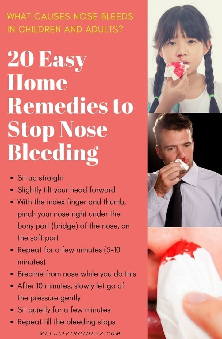 how to stop a nose bleeds