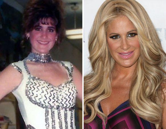 Quot Real Housewives Of Atlanta Quot Kim Zolciak Plastic Surgery