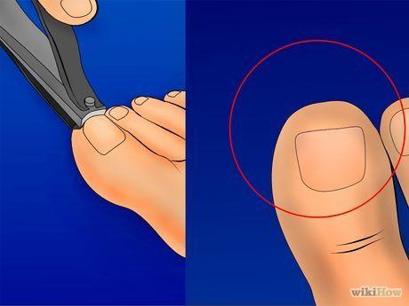 Image titled Get Rid of Ingrown Toenails Step 8