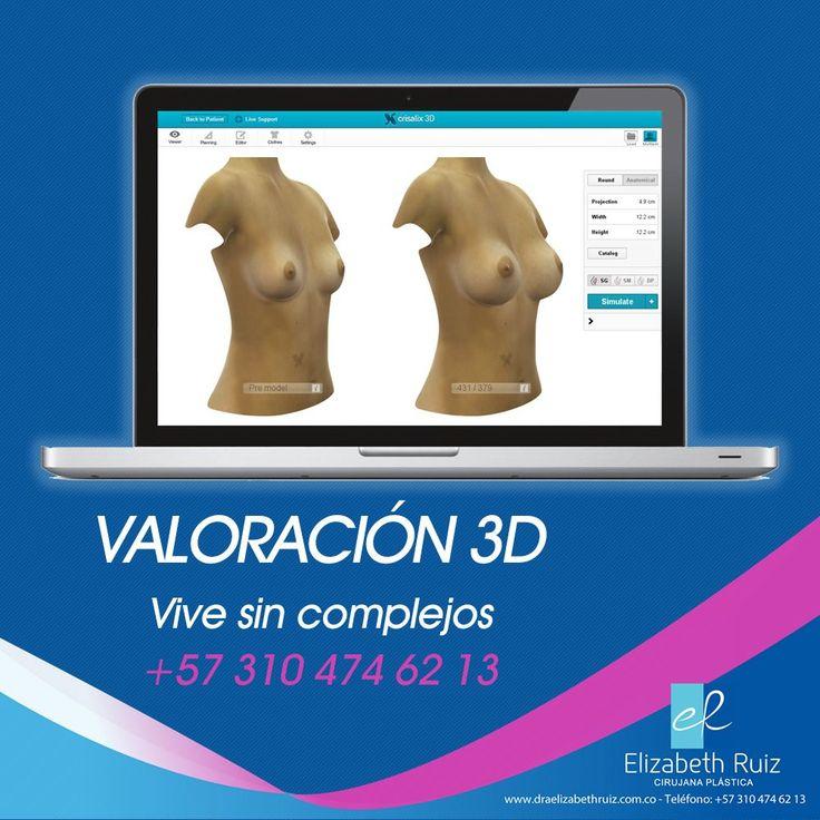 Valoración Profesional 3D  Está herramienta permite mostrarle al paciente una simulación aproximada de como seria el resultado de la cirugía.  Contáctanos ahora llamando al (+57) 310 474 62 13 o a través de nuestro sitio web.  Dra. Elizabeth Ruiz Médica y Cirujana Cirujana Plástica Miembro de la SCCP. CQB - Consultorio 203  PBX: 572 513 15 -72 - 57 310 474 62 13 - 57 320 695 89 19  #plasticsurgery #cirugiaplastica #plasticsurgeon #cirujanaplastica