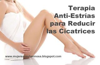 Mujer Sana y Hermosa: Terapia Anti-Estrías para Reducir las Cicatrices