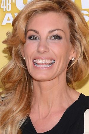 Faith Hill has braces! So do her two daughters, making her a great role model in many ways.