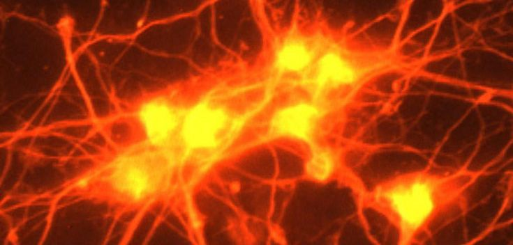 How a waste product of exercise protects neurons from trauma damage