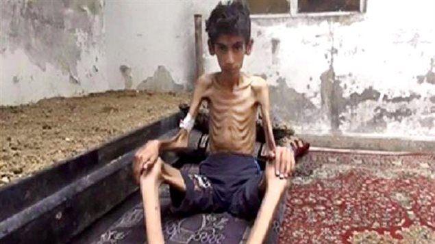 Esta foto sin fecha difundida por el Consejo Revolucionario local del Madaya muestra un niño víctima del hambre y la guerra en Siria. La agencia Associated Press afirma haber verificado la autenticidad de esta imagen.