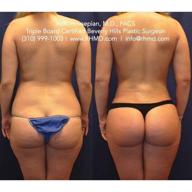 Before and after of a patient of Dr. Raffi Hovsepian who underwent: 1. Brazilian Buttock Augmentation (Butt Lift) using her own natural fat.  2. Dr. Hovsepian's advanced liposculpture technique. This young lady has her natural beauty and hourglass figure back without anyone realizing that any plastic surgery was done. For more information visit www.RHMD.com | (310) 999-1003  #FatTransfer #BrazilianButtLift #hourglass #ButtockAugmentation #Liposuction #fit #Curves #BBL #DrRaffiHovsepian #Lipo