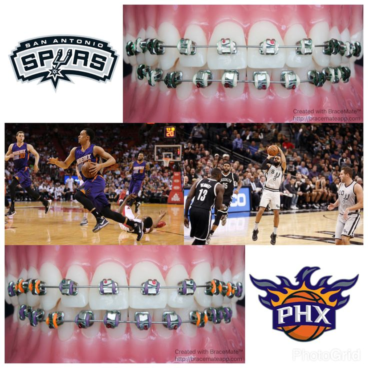 #NBA #Basketball #SanAntonio #SanAntonioSpurs #Texas #southwest #Phoenix #PhoenixSuns #Arizona #pacific #westernconference #bball #braces #orthodontics #orthodontist #dentist #dental #colors #color #iphone #ipad #apple #android #mexicocity #mexico