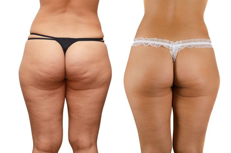 Cellulit czyli tak zwana skórka pomarańczowapowstaje gdy tłuszcz i toksyny kumulują się pod skórą. Wówczas osłabia się tkanka łączna a skóra traci jędrność. Problem ten występuje uokoło 80% kobiet.   Przyczyną jest nieprawidłowa dieta, brak ruchu,