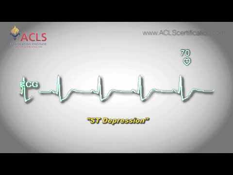 ST Depression rhythm video by the ACLS Certification Institute. To view more videos, check out the ACLS Certification Institute at http://www.aclscertification.com or subscribe to our channel at https://www.youtube.com/user/aclsinstitute #ACLSRhythms #ACLSRhythmRecognition #ST Depression #STDepressionRhtyhm #ACLSReview #ACLS #BLS #PALS #NRP #aclscertification #aclscertificationinstitute