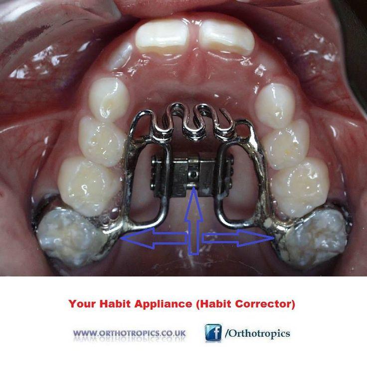 Best Dentist Near Me >> Tongue Stop. Photo: Orthotropics | Tongue Thrust - Reverse Swallowing - Πλημμελή Κατάποση ...