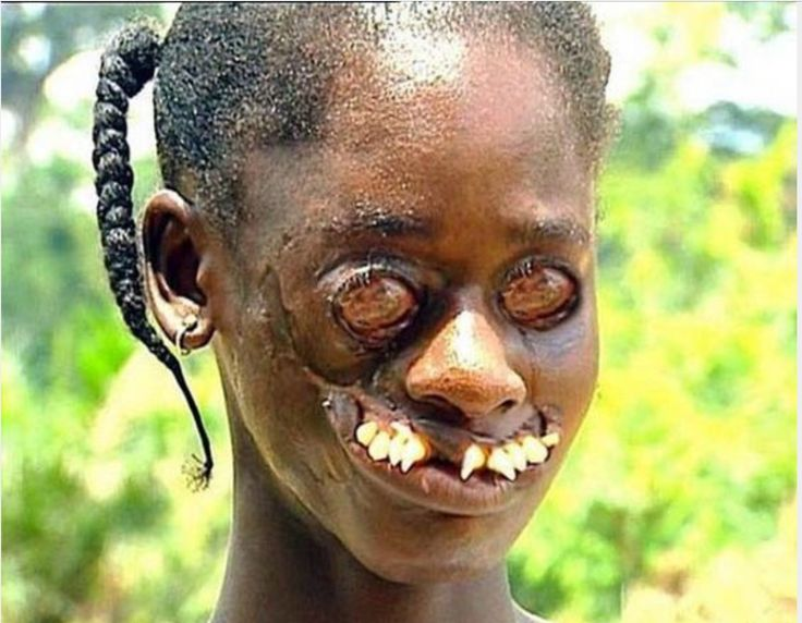 Image result for ugliest people | Most Disturbing Imagery ... Pictures Of The Most Ugly People In The World