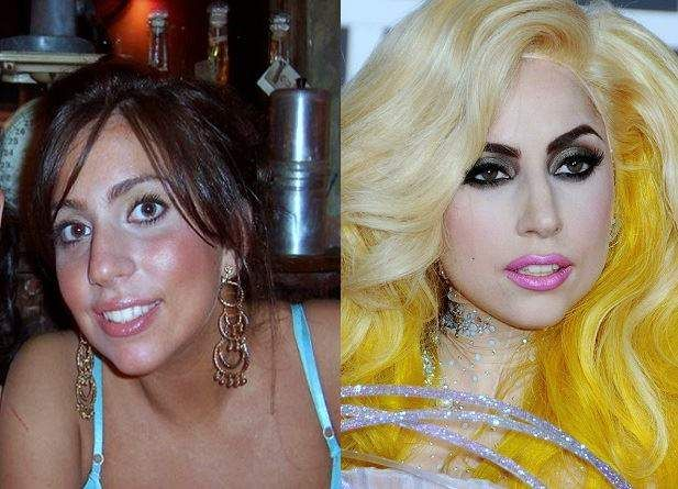 Lady Gaga Plastic Surgery Before And After Photos