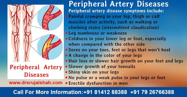 Peripheral artery disease (also called peripheral arterial ...