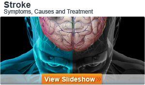 Transient Ischemia Attack (TIA, Mini-Stroke) ➡️ Causes, Risk Factors, Symptoms, Diagnosis, Treatment, & Prognosis | MedicineNet (12.6.13)
