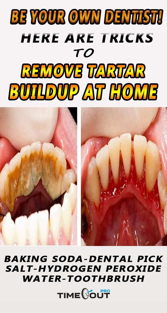 Your dentist is the first solution if you want to clean your teeth, but another solution is to remove tartar at home.