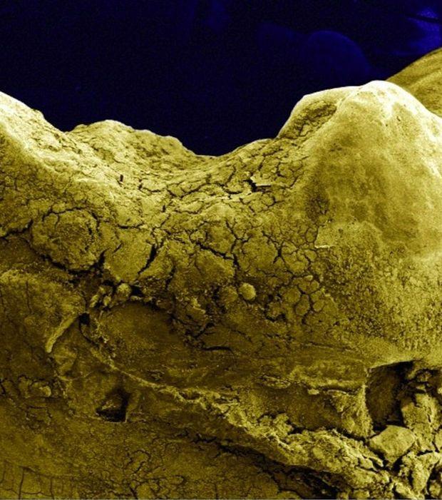 Photo : La surface d'une dent humaine vue au microscope.