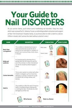 Your Guide to Nail Disorders - Education - NAILS Magazine