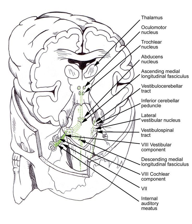 48 best TOPICS: Vestibular System images on Pinterest