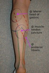 Warning Signs for Achilles Problems | Run Coaching, Ironman and Triathlon Specialists - Kinetic Revolution