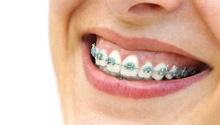 Ortodoncja. Równe białe zęby to wizytówka każdego człowieka, która dodaje pewności siebie i pomaga na co dzień. Konsultacja ortodontyczna pozwoli na sprawdzenie rozwoju uzębienia i ewentualną korektę. Ortodonta ustala indywidualny tok leczenia, który kontroluje wraz z pacjentem podczas kolejnych wizyt. #dentistry