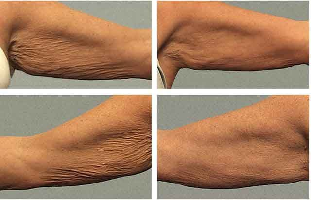 Arm liposuction results 8 – Liposuction before and after