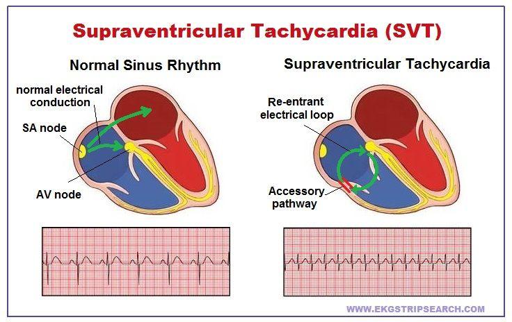 What Is Svt >> Ekg Strip Search Supraventricular Tachycardia Svt Life