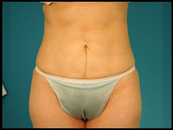 Liposuction Side Effects:   - scars  - limited mobility  - bruising and swelling