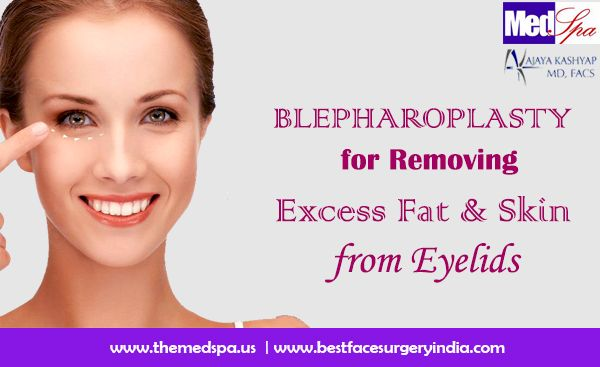 how to get rid of upper eyelid fat without surgery