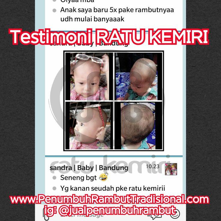 Jual obat penyubur rambut bayi alami. WA 0878 2338 1610, BBM 2BEB4CE4. Terbukti manjur dan ampuh untuk rambut bayi.