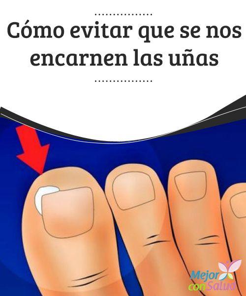 Cómo evitar que se nos encarnen las #uñas  Aunque sea más frecuente que se encarnen las uñas de los #pies, las de las manos también pueden hacerlo. Es fundamental cortarlas rectas para evitar #problemas #RemediosNaturales