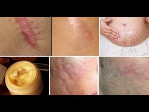Eliminate Scars From Any Part Of Your Body In Less Than A Month - YouTube