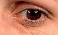 Yellow eyelid marks are 'early warning sign of heart disease'
