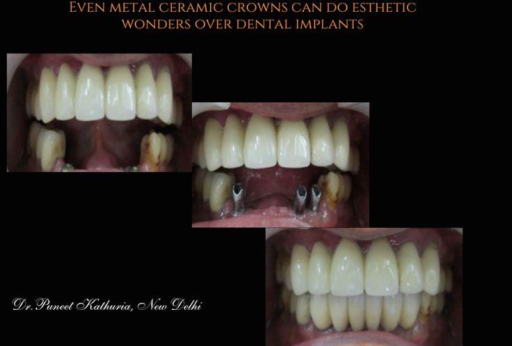 Even Porcelain Fused to Metal Bridges over Dental Implants
