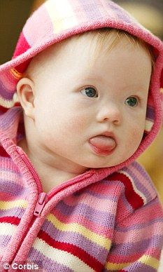Doctor calls for mothers to 'opt in' to Down's Syndrome test