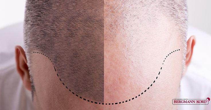 Μεταμόσχευση Μαλλιών FUE by Bergmann Kord = Θεαματικά Αποτελέσματα ! Η μέθοδος FUE αποτελεί τη νούμερο ένα τεχνική Μεταμόσχευσης Μαλλιών,  παγκοσμίως, η οποία εφαρμόζεται από τους εξειδικευμένους γιατρούς της Βergmann Κord, με εξαιρετικά αισθητικά αποτελέσματα. Διαβάστε περισσότερα εδώ : goo.gl/PcrKaP