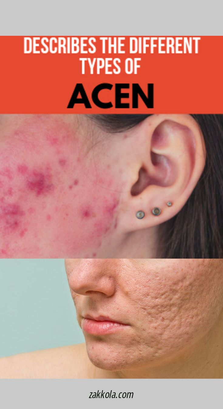 acne-adult-forum