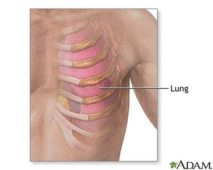Costochondritis and Tietze Syndrome Symptoms Can Mimic Heart Attack