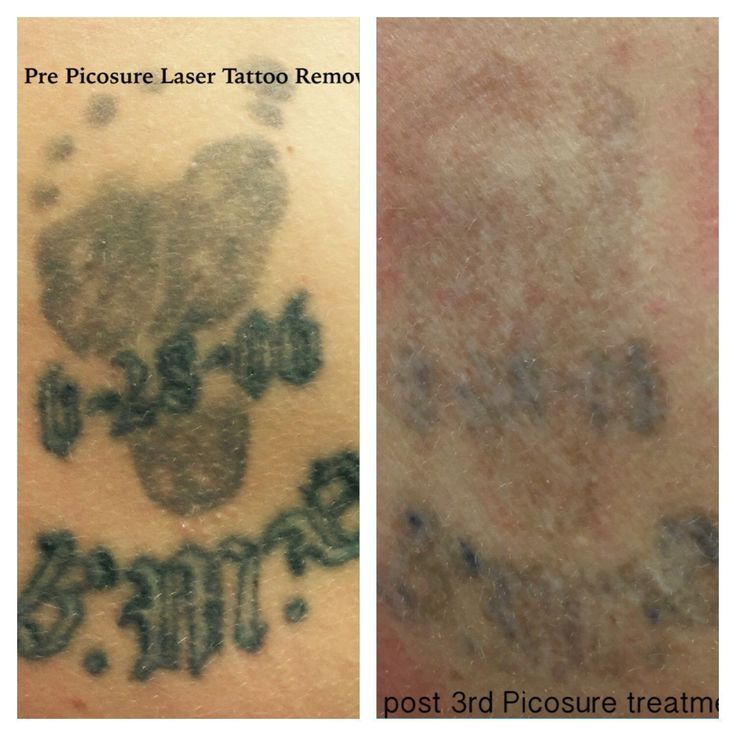 Before Picosure treatments and 2 weeks after my 3rd Picosure laser tattoo removal treatment. #TattooRemoval #tattooremovalpicosure #tattooremovalbeforeandafter