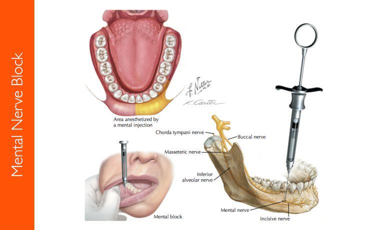 procedural blog extra inferior alveolar nerve block brown
