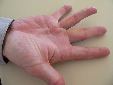 Dupuytren contracture...known as Viking disease or Celtic hand