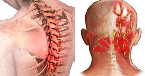 Un articol de Mihaela Iliescu     Prin nevralgii sunt definite durerile aparute…