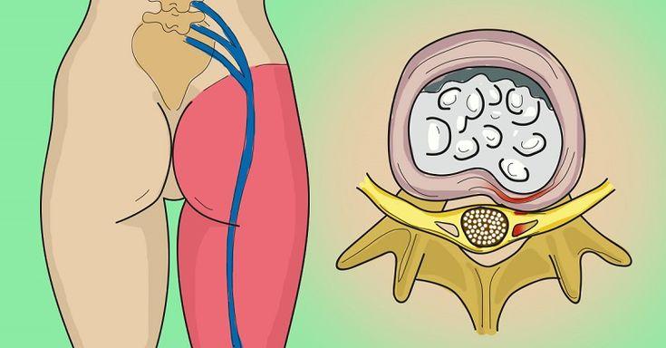 ОДНО ПРОСТОЕ УПРАЖНЕНИЕ ЧТОБЫ ИЗБАВИТЬСЯ ОТ БОЛИ В ПОЯСНИЦЕ И ЗАЩЕМЛЕНИЯ СЕДАЛИЩНОГО НЕРВА. Защемление седалищного нерва (ишиас, или невралгия седалищного нерва) вызывает сильнейшие болевые ощущения в области спины и задней поверхности бедра. Это заболевание характерно для людей в возрасте 3…
