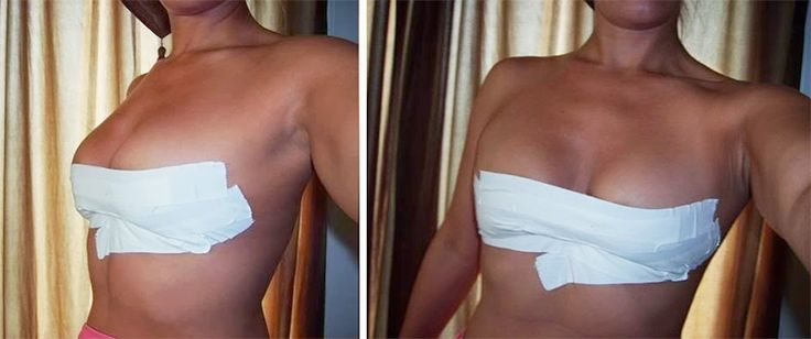 Boob Tape: How To Tape Your Breasts For Amazing Cleavage | The Bra Guide